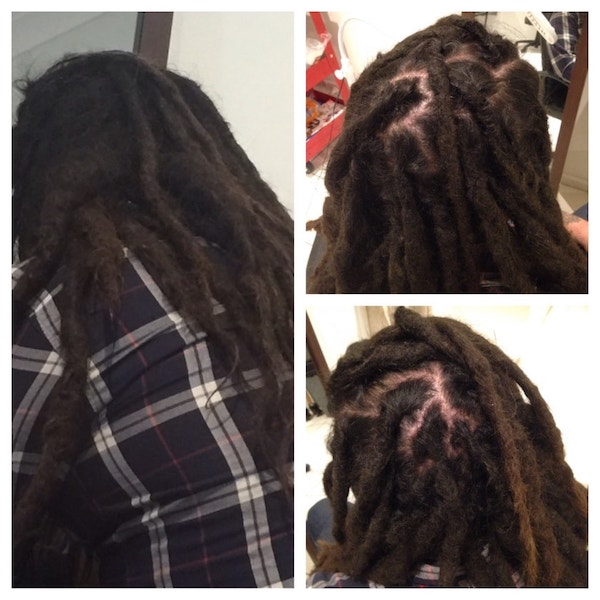 dreadlock maintenance before after