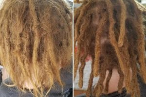 recontruction repair dreads melbourne