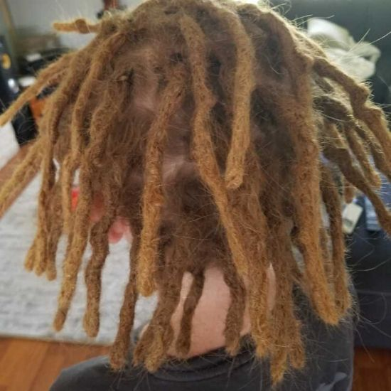 recontruction repair dreads melbourne after